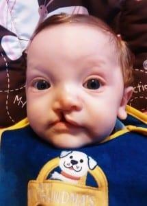 Theo nasceu com lábio leporino (Foto: arquivo pessoal)
