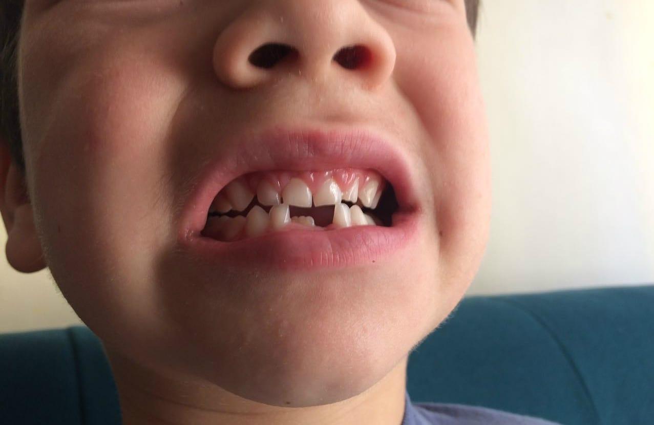 Troca de dentes começa por volta dos seis anos de idade